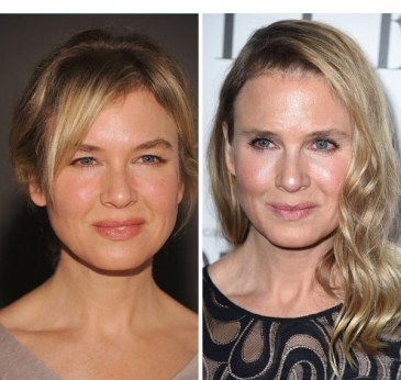 renee-zellweger-before-and-after-gty-ftr