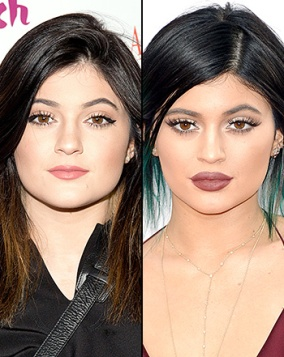 1418074163_kylie-jenner-lips-transformation-350